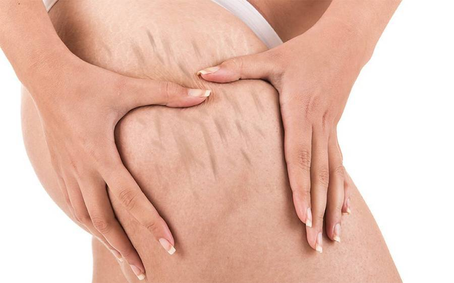 Лечение стрий, растяжек, шрамов