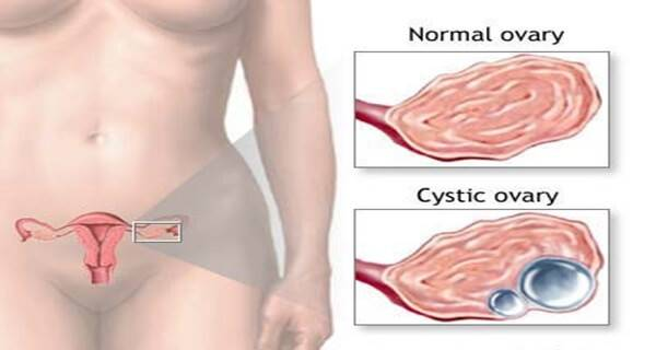 Киста яичника после 60 лет: лечение, причины, симптомы, последствия