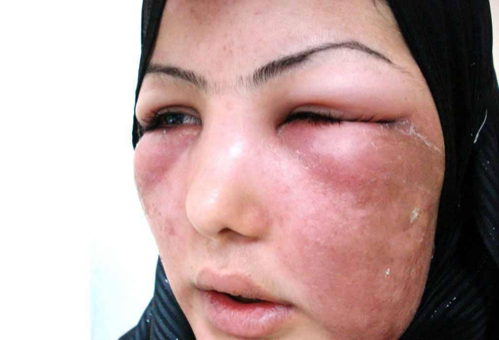 Рожистое воспаление кожи лица: причины, симптомы, лечение
