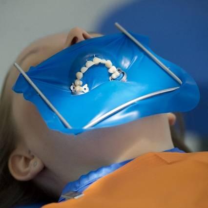 Коффердам – что это такое и зачем применяется при стоматологическом лечении
