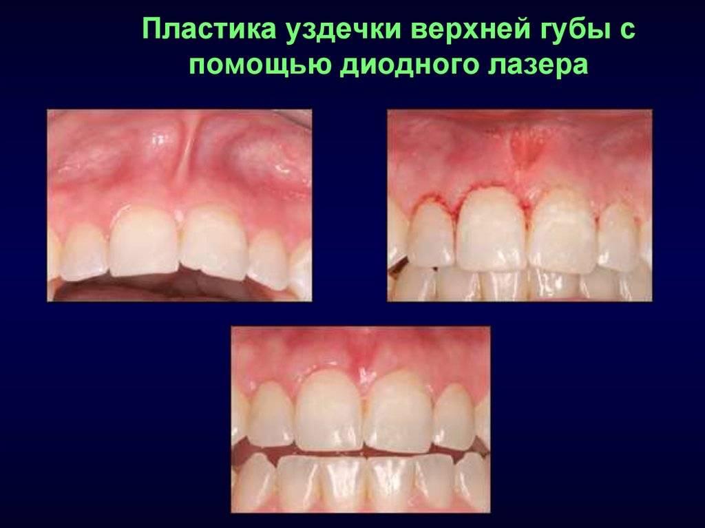 Нужно ли подрезать короткую уздечку верхней губы у детей и зачем