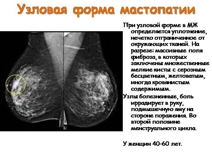 Фкм молочных желез. что это такое по маммографии, на узи. лечение диффузных дисгормональных изменений гомеопатией