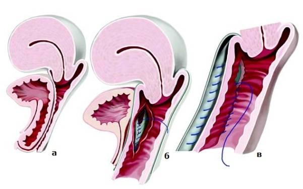 Причины опущения и выпадения матки, лечение и восстановительный период