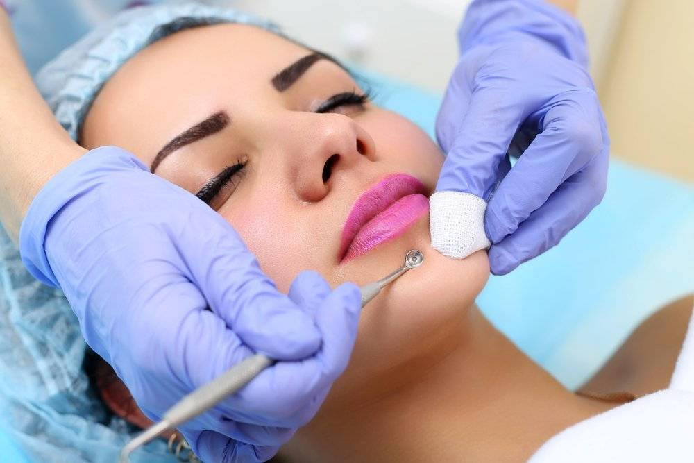 Механическая чистка лица — болезненная, но эффективная процедура
