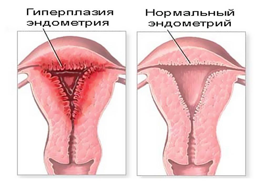 Гиперплазия эндометрия у женщин: что это такое, причины, симптомы, лечение и последствия