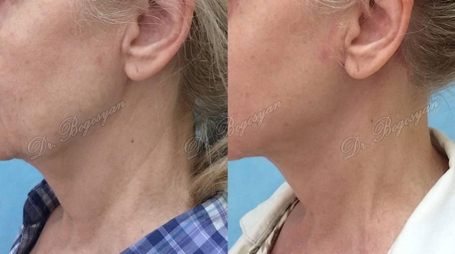 Платизмопластика (подтяжка и омоложение шеи)
