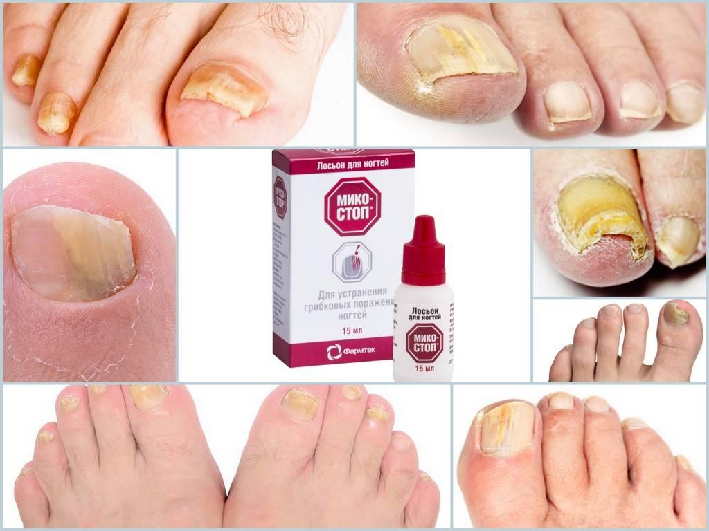 Грибок ногтей на ногах: чем лечить, самые эффективные средства