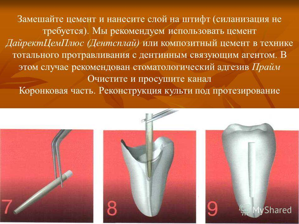 Современные методы и материал для обтурации корневых каналов