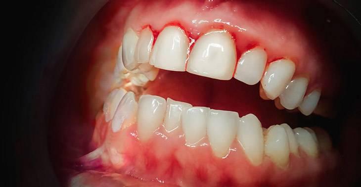 Почему немеют зубы