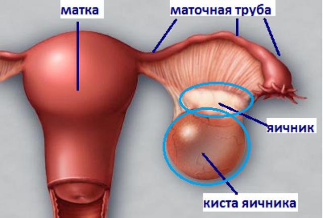 Что такое киста яичника: симптомы и лечение у женщин