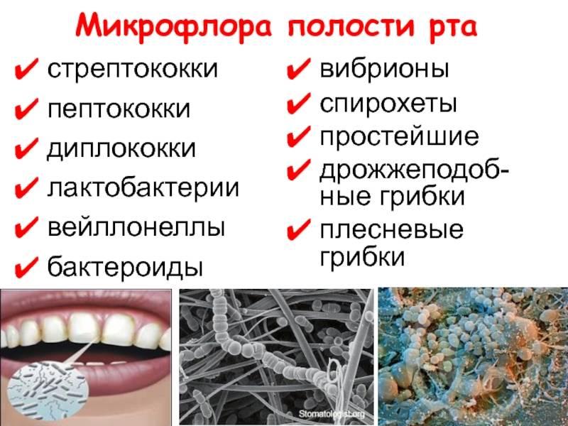 Микрофлора ротовой полости: неочевидные проблемы и очевидные решения. дисбактериоз носоглотки симптомы и лечение