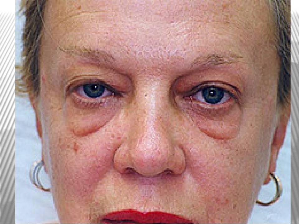 Мешки под глазами - причины появления и методы устранения