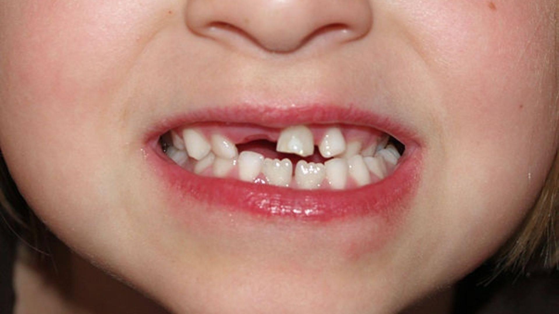 Что делать, если у ребенка после выпадения молочных зубов не растут постоянные?
