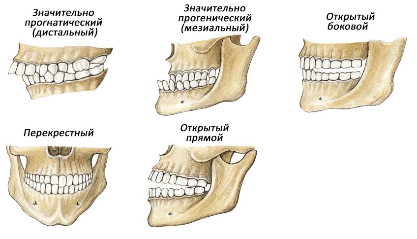 Морфологическая и функциональная характеристика молочного и сменного прикуса, период формирования, форма зубных рядов