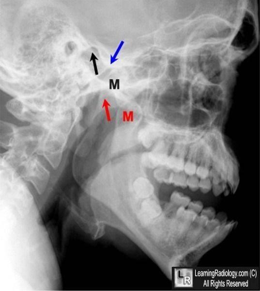 Методика и техника рентгенологического исследования височно-нижнечелюстного сустава