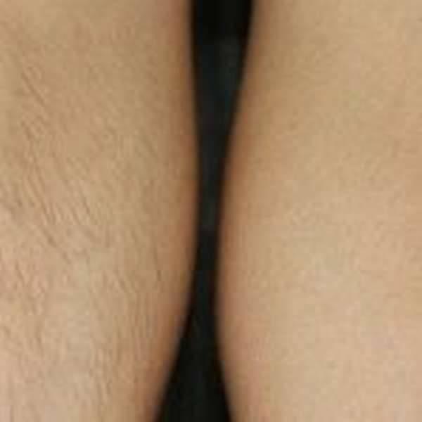 Биоэпиляция: короткий путь к гладкой коже