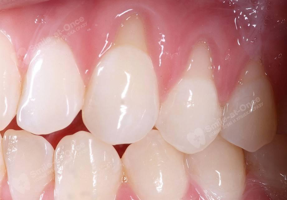 Лечение воспаления десны около зуба