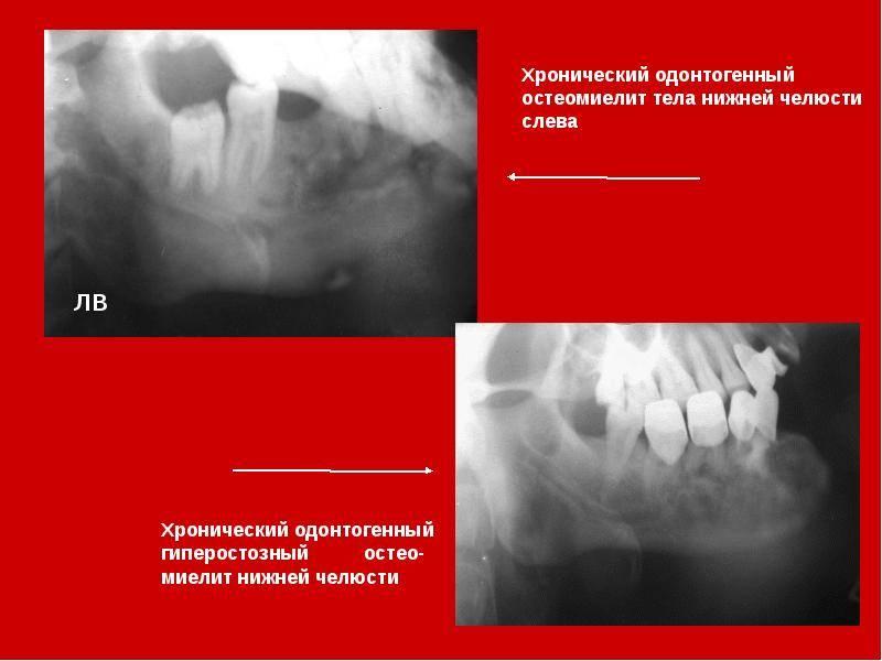 Симптомы остеомиелита челюсти и его лечение