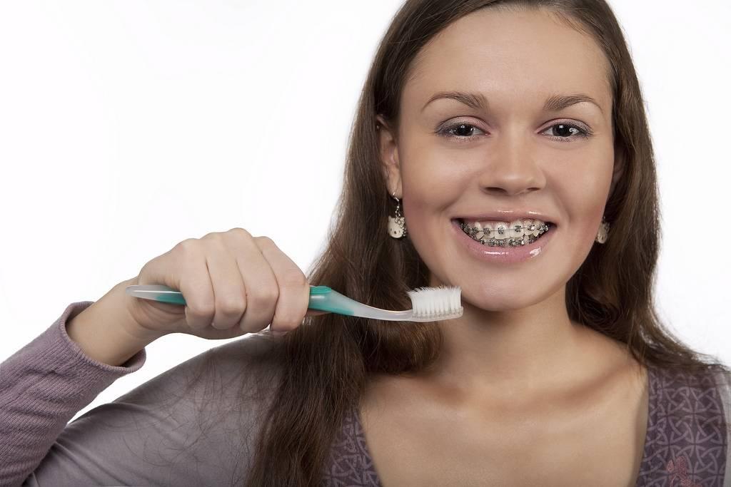 Правильный уход за брекетами и зубами