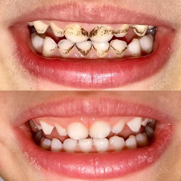 Налет на молочных зубах