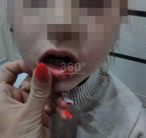 Ребенок разбил губу опухла что делать. ребенок разбил губу, что делать? диагностика и лечение