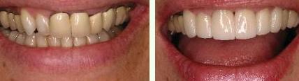 Что делать, если сгнил зуб под коронкой и ощущается неприятный запах и вкус крови?