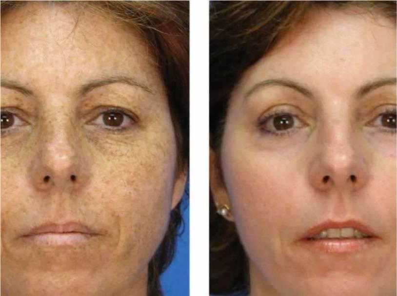 Лазерный пилинг лица — отзывы. лицо после лазерного пилинга — фото до и после