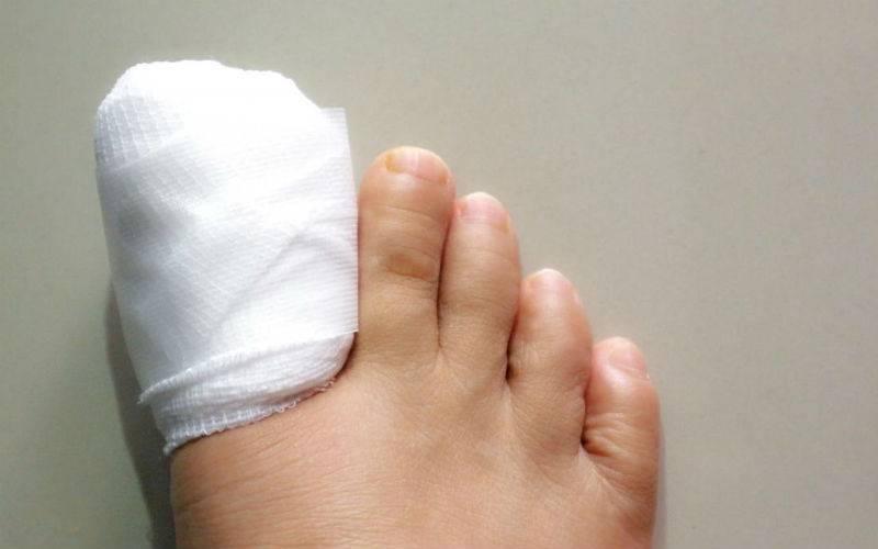 Последовательность удаления вросшего ногтя лазером