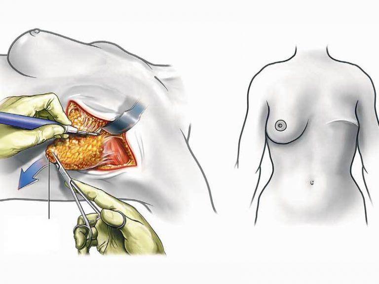 Рак молочной железы, операция