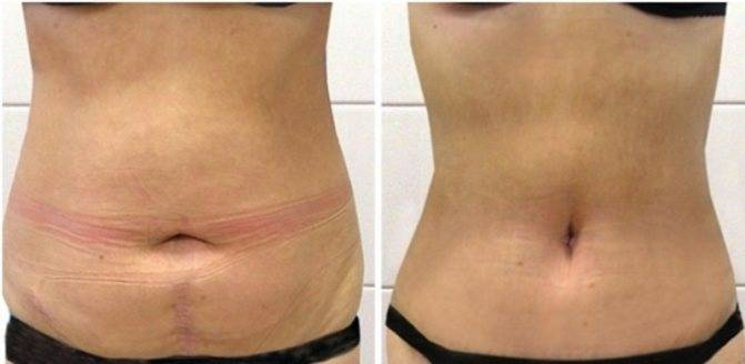 Душ шарко для похудения — фото до и после