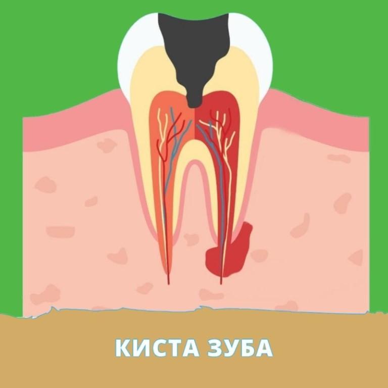 Киста зуба — причины возникновения и лечение