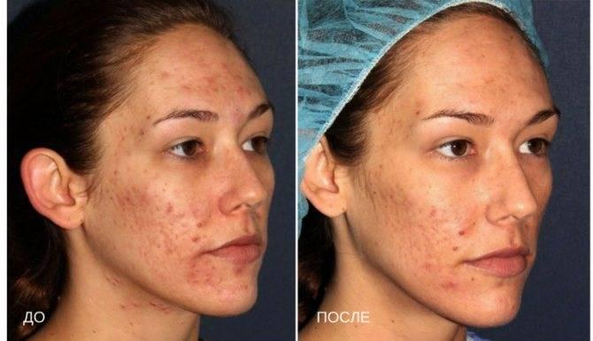Миндальные пилинги в домашних условиях: мягкое очищение кожи