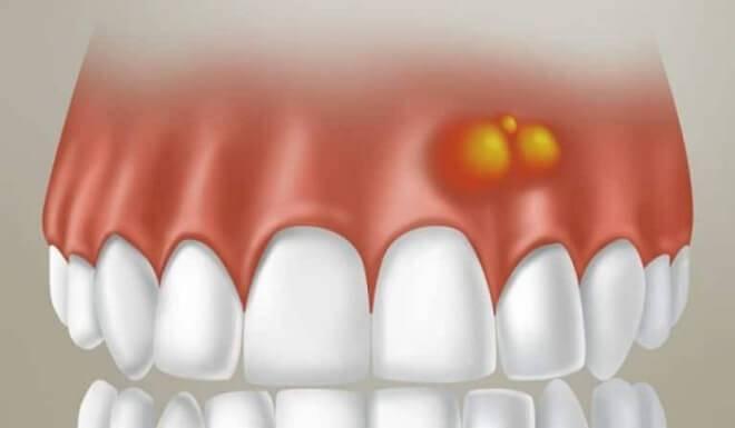 Если на десне появилась шишка с гноем: чем лечить, чтобы болячка прошла раз и навсегда?
