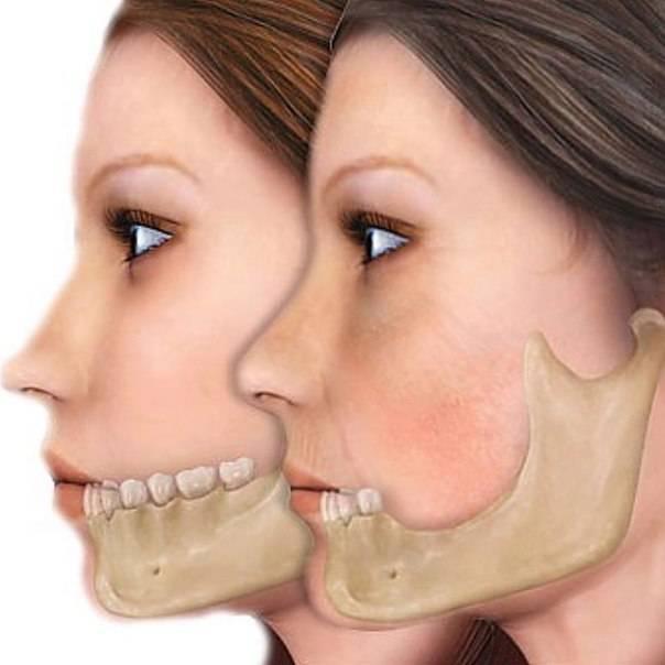 Онемение после удаления зуба