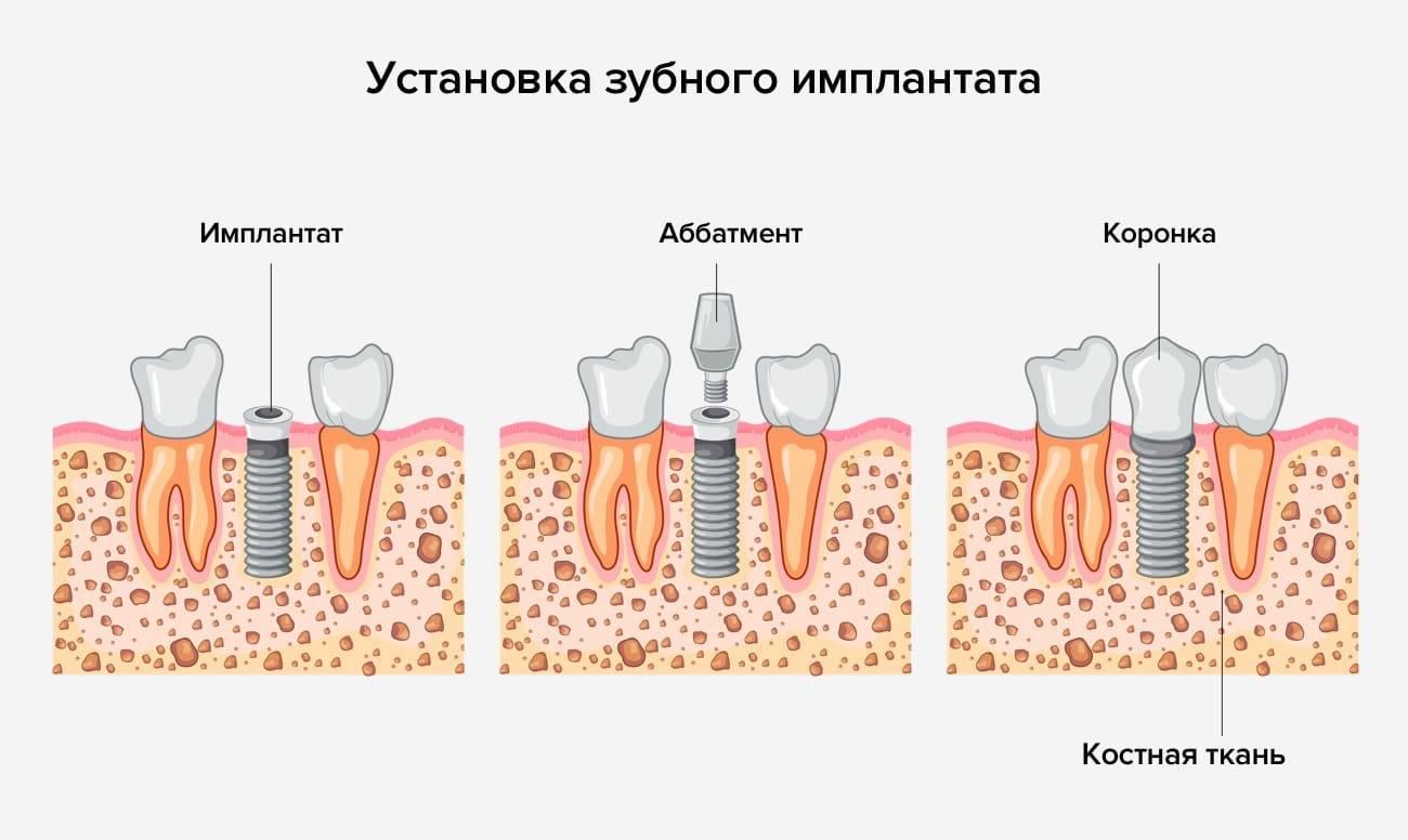 Все, что вы должны знать об имплантации зубов
