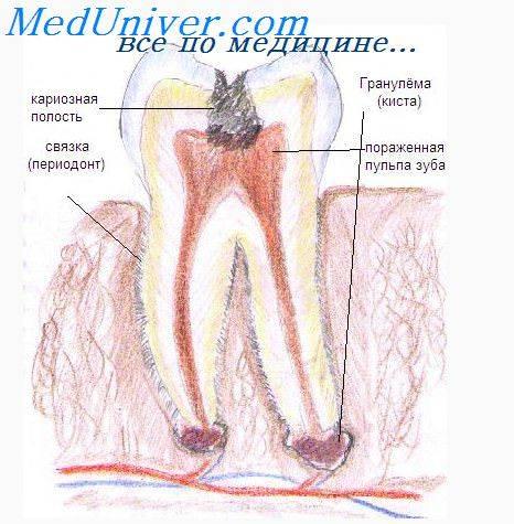 Хирургическое лечение гранулемы зуба. как лечить гранулему зуба с помощью антибиотиков и рецептов народной медицины