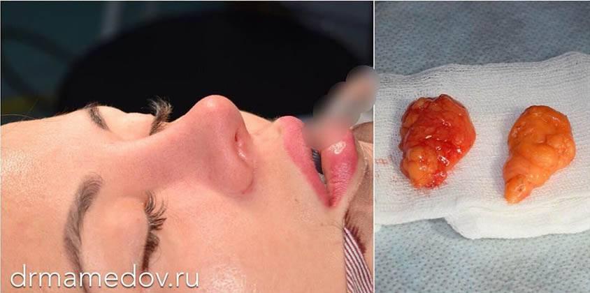 Как ухаживать за швом после операции аденомы слюнной железы