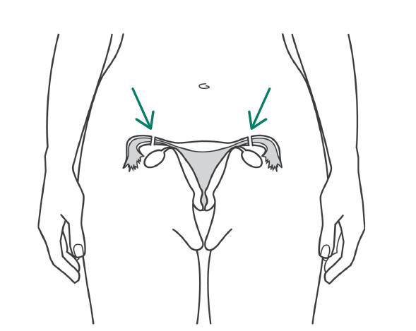Как проводят перевязку маточных труб: особенности хирургической стерилизации