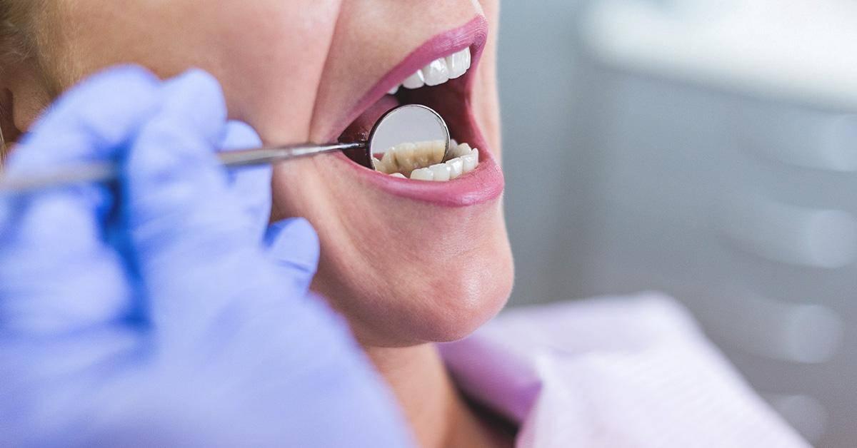 Целебные свойства чеснока при зубной боли