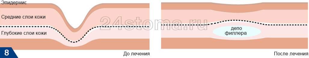 Заполнение морщин филлерами: виды филлеров, показания и эффективность