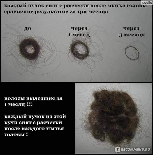 Сколько волос должно выпадать в день?
