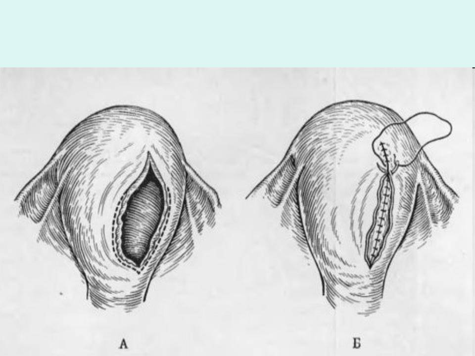 Разрыв промежности 1-2-3-4 степени при родах. признаки, классификация, как избежать, ушивание, лечение
