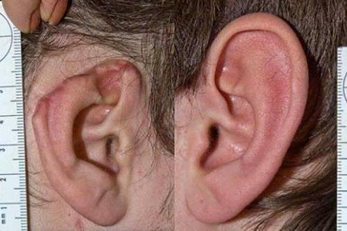 Холестеатома уха: признаки, осложнения и лечение