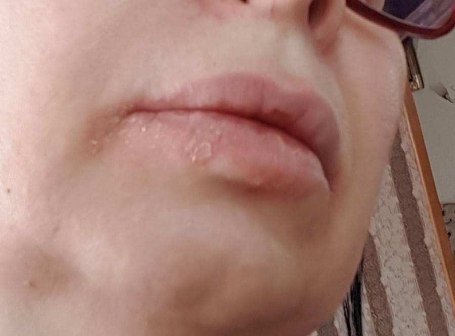 Что делать, если шелушатся и трескаются губы, и почему это происходит?
