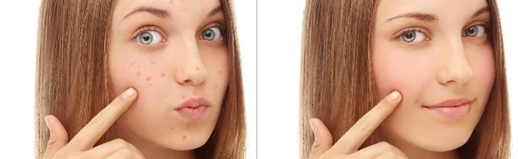 Жирная кожа: как побороть прыщи и нормализовать баланс
