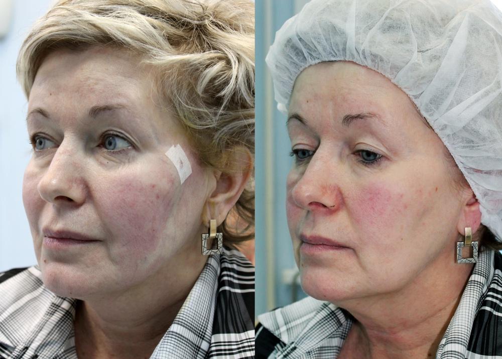 подтяжка лица фото до и после отзывы этой