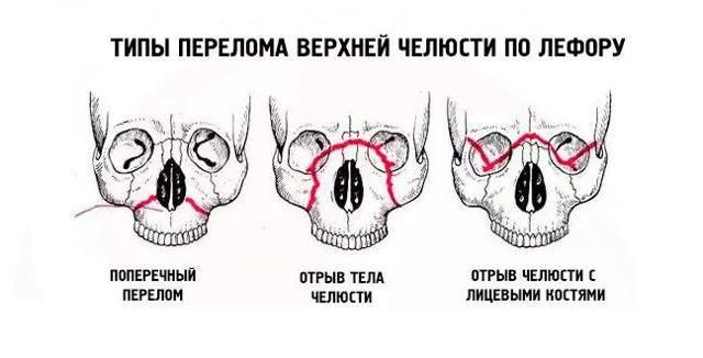 Перелом скулы