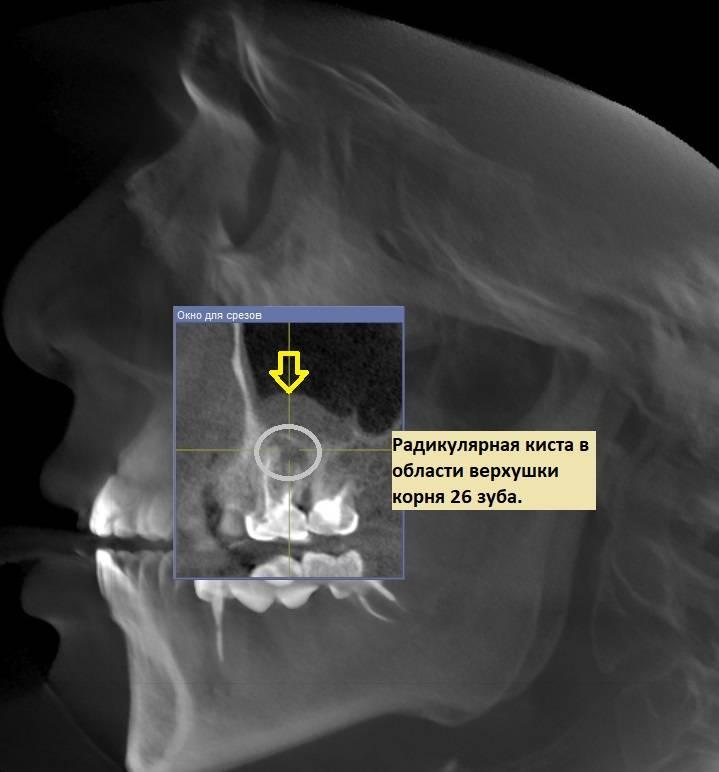 Корень зуба в гайморовой пазухе что делать