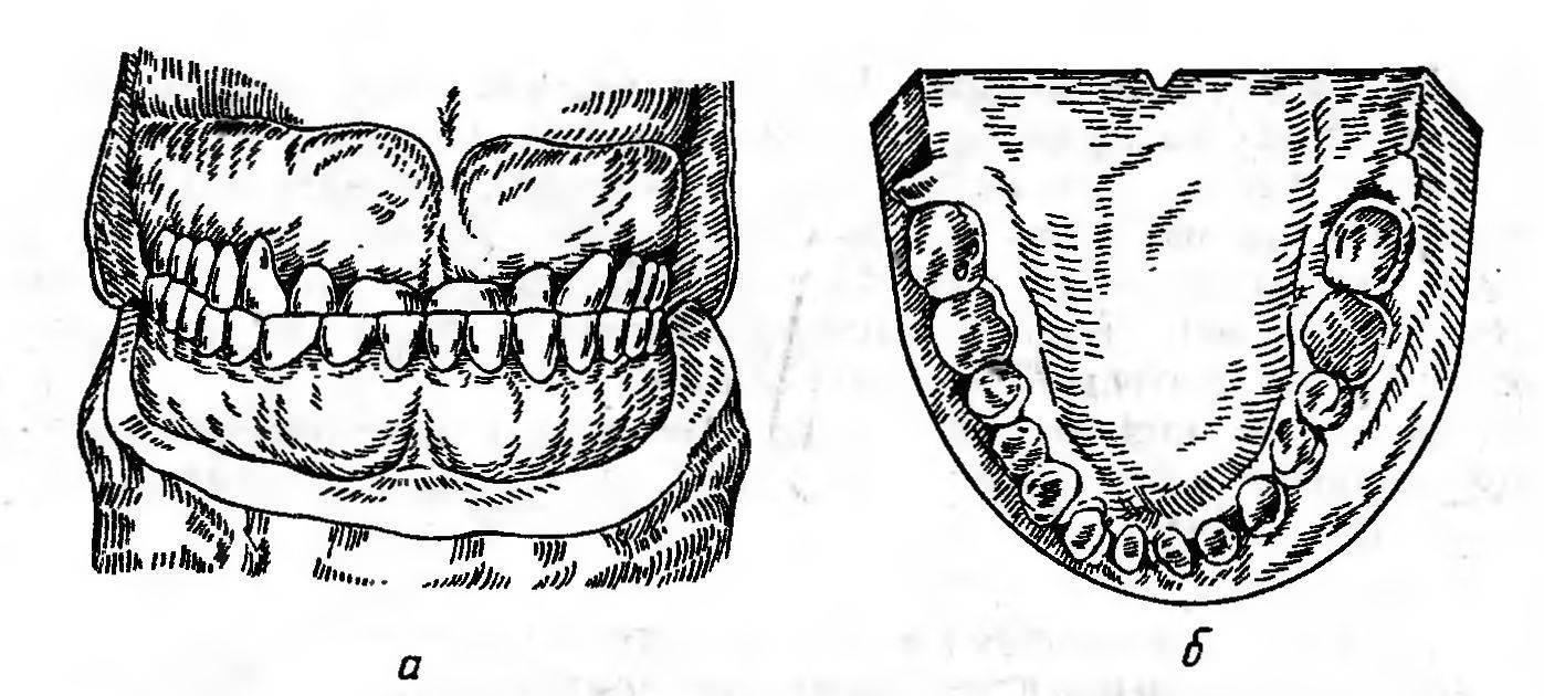 Механизм естественного и патологического стирания зубов
