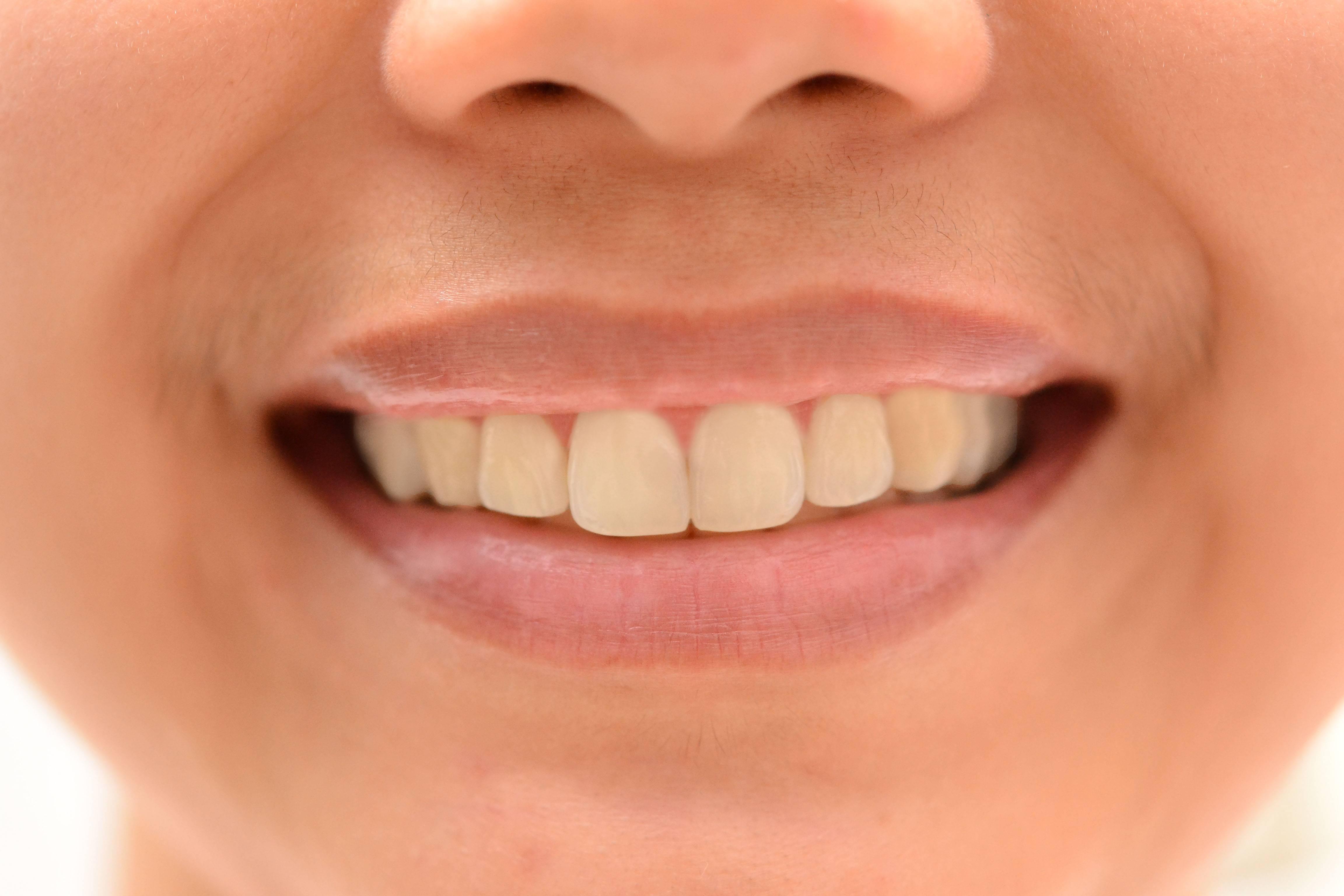 Почему появляется желтый налет на зубах и как от него избавиться?